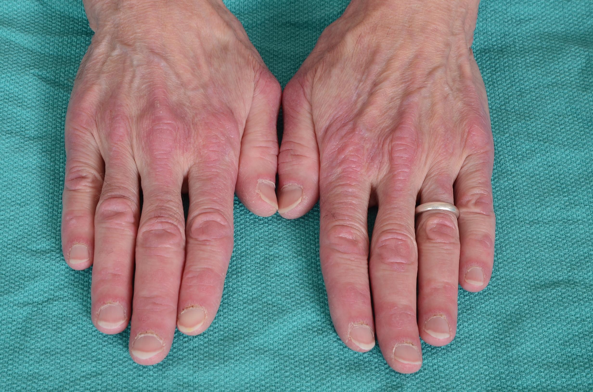 dermatomyositis gottrons papules